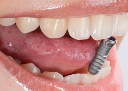 zahnarzt-kelkheim-zahnersatz-implantate-001